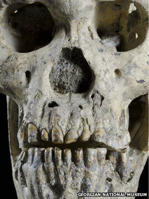 The 1.8 million-year-old skull is the most complete hominid skull ever found.  The idea that there were several different human species walking the Earth two million years ago has been dealt a blow.  Instead, scientists say early human fossils found in Africa and Eurasia may have been part of the same species. Continue story -