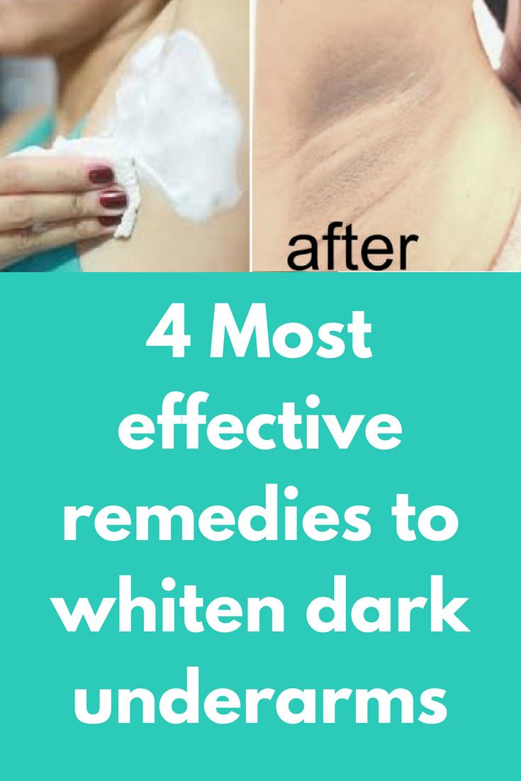 Pin On Skin Lightening