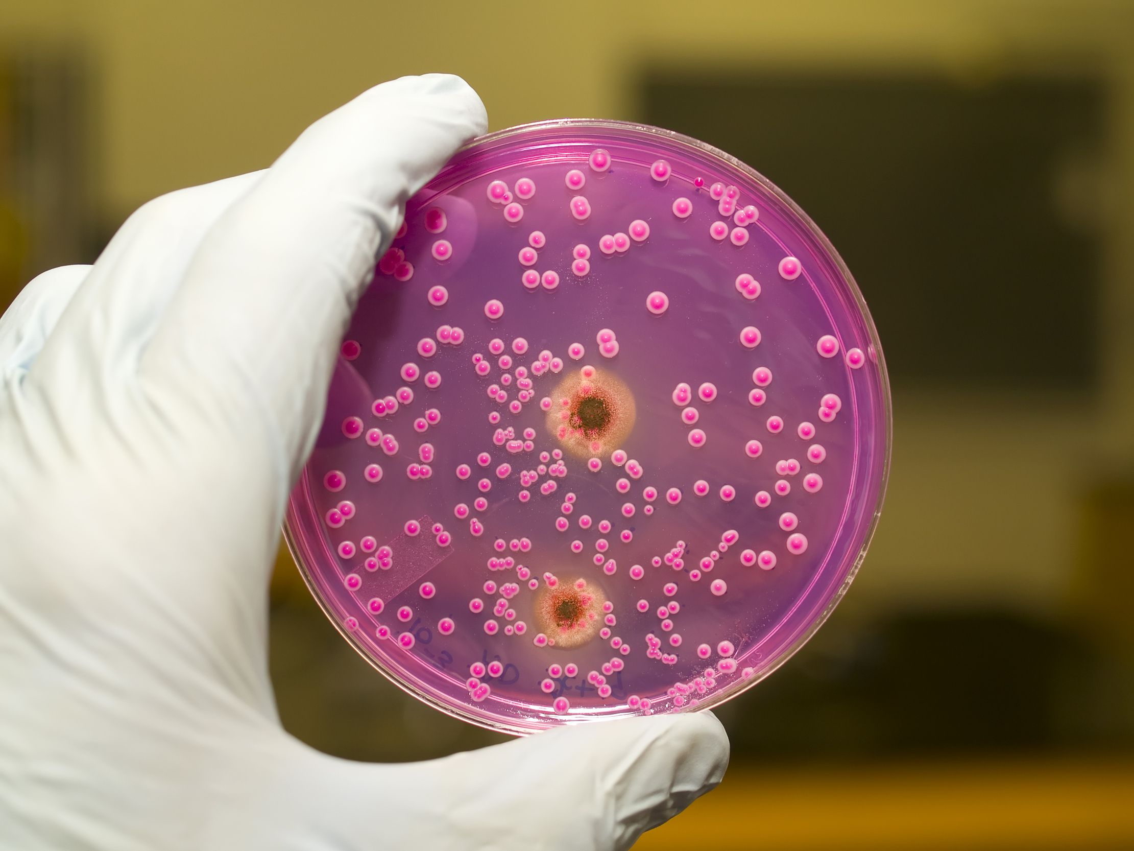 Infection from saliva yeast Yeast infection