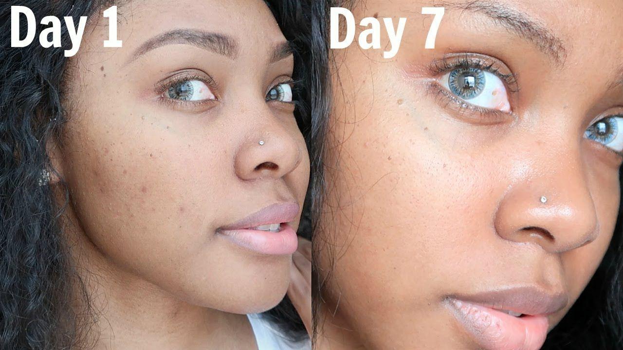 Pin On Diy Skincare