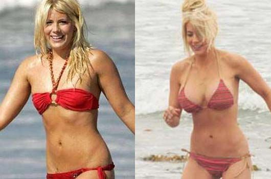Shayne Lamas Plastic Surgery Photo Before And After Www Celeb