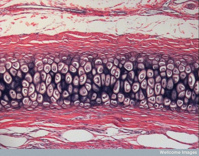 Elastic Cartilage Maintains Shape External Ear Chondrocytes Histology Slides Science Cells Human Anatomy And Physiology