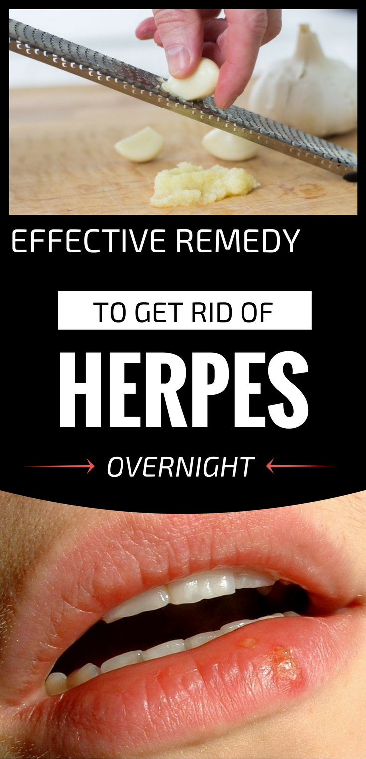 effective remedy to get rid of herpes overnight health medical rh pinterest com
