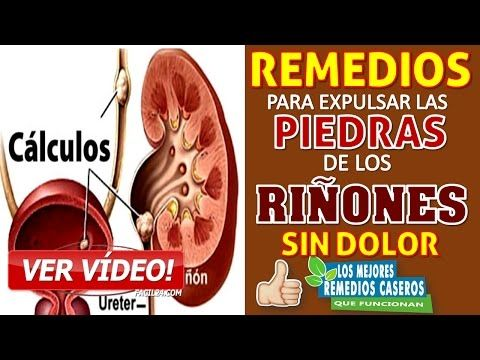 Como Eliminar Calculos Renales Rapidamente Youtube Home Remedies Remedies