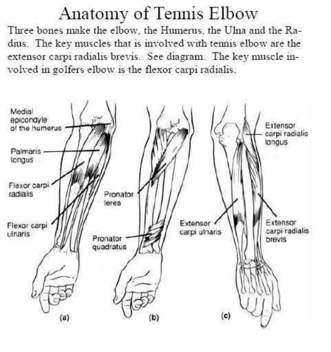 Anatomy of tennis elbow | Physical Therapy | Pinterest | Tennis ...