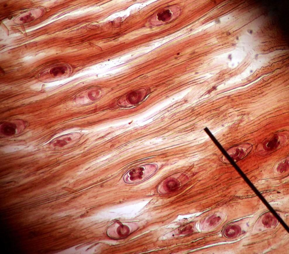Trichinella Spiralis In Muscle- Parasite Occurring In Rats