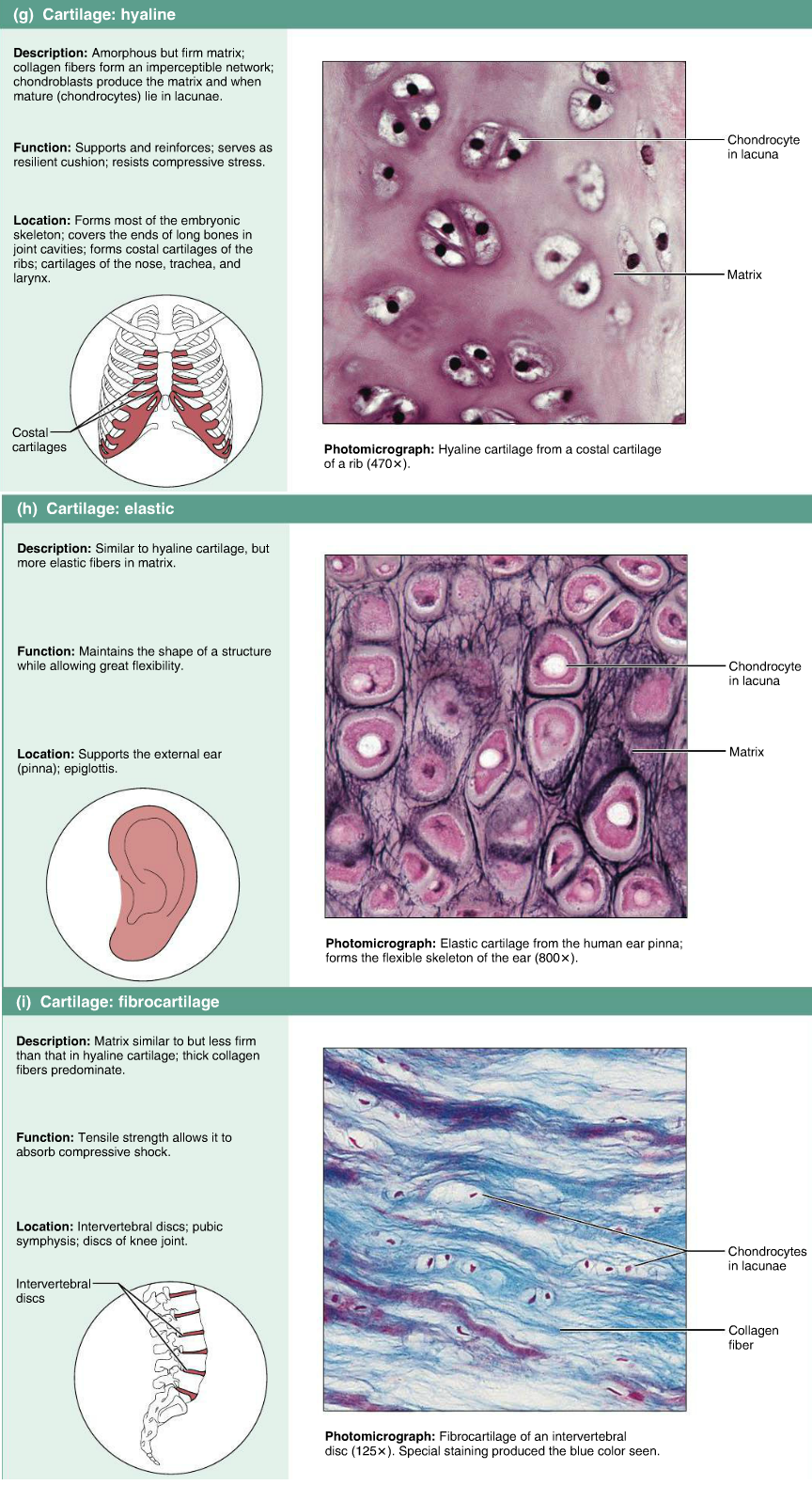 Connective Tissues Cartilage Hyaline Elastic Fibrocartilage Anatomy And Physiology Human Anatomy And