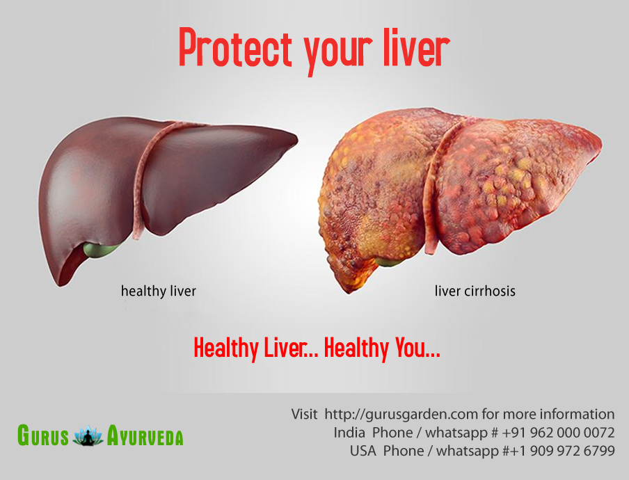 Cirrhosis Is The Severe Scarring Of The Liver And Poor Liver