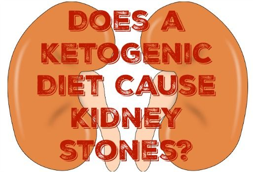 Does A Ketogenic Diet Cause Kidney Stones I Remember The First Time I Learned About The Connection Between A Diet High Ketogenic Kidney Stones Ketogenic Diet