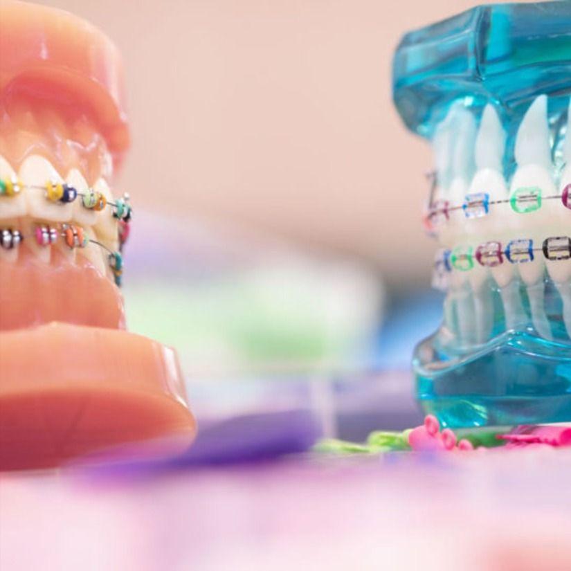 Best orthodontics in dubai orthodontics dental clinic