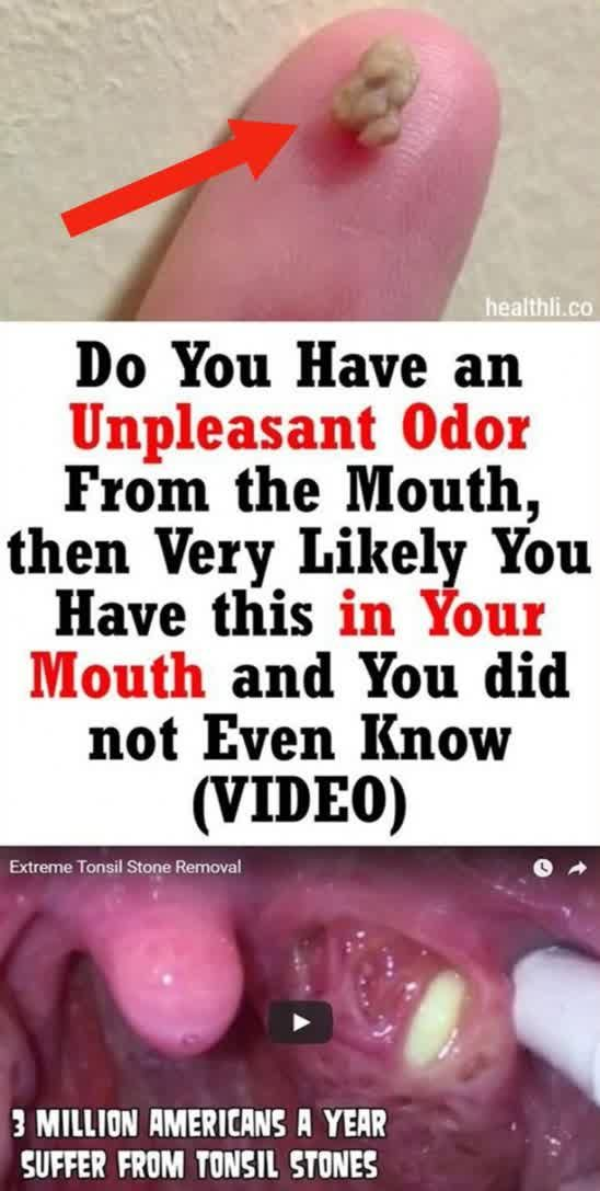 Do You Have An Unpleasant Odor From The Mouth, Then Very Likely You Have…