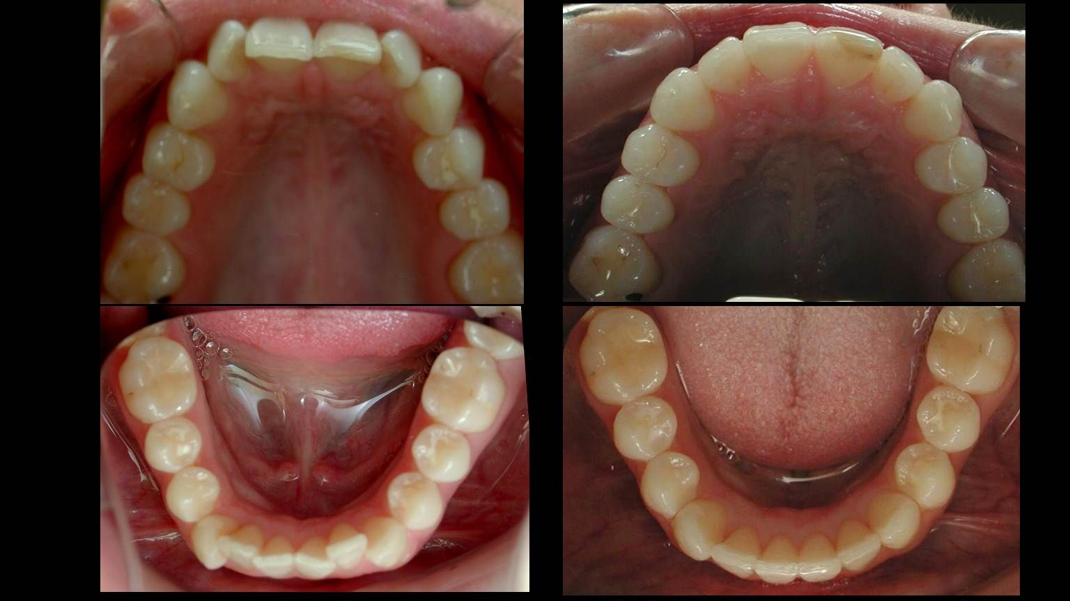 Invisalign can treat and fix most common dental problems