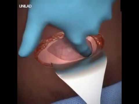 Tratamentul varicelor - gsmcontact.ro - 5