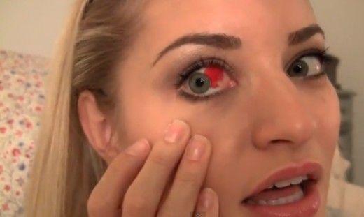 Burst blood vessel in eye – Symptoms, Causes, Treatment
