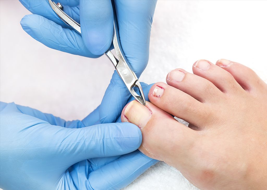 Chiropody Podiatry and Chiropody Clinic in St Leonards