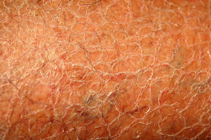 Tremetski Com Treatment Skin Calidora Offers The Calidora