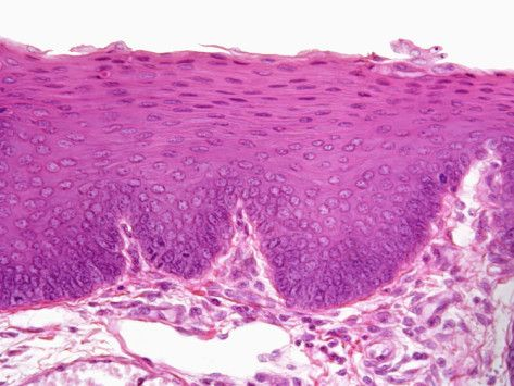 Stratified Squamous Epithelium Non Keratinized