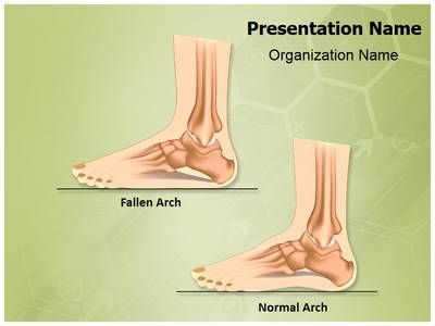 Pes Planus Flat Foot Powerpoint Template is one of the best - nursing powerpoint template
