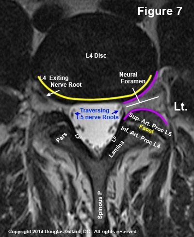 ChiroGeek.com | Radiology | Pinterest | Radiology and Radiology imaging