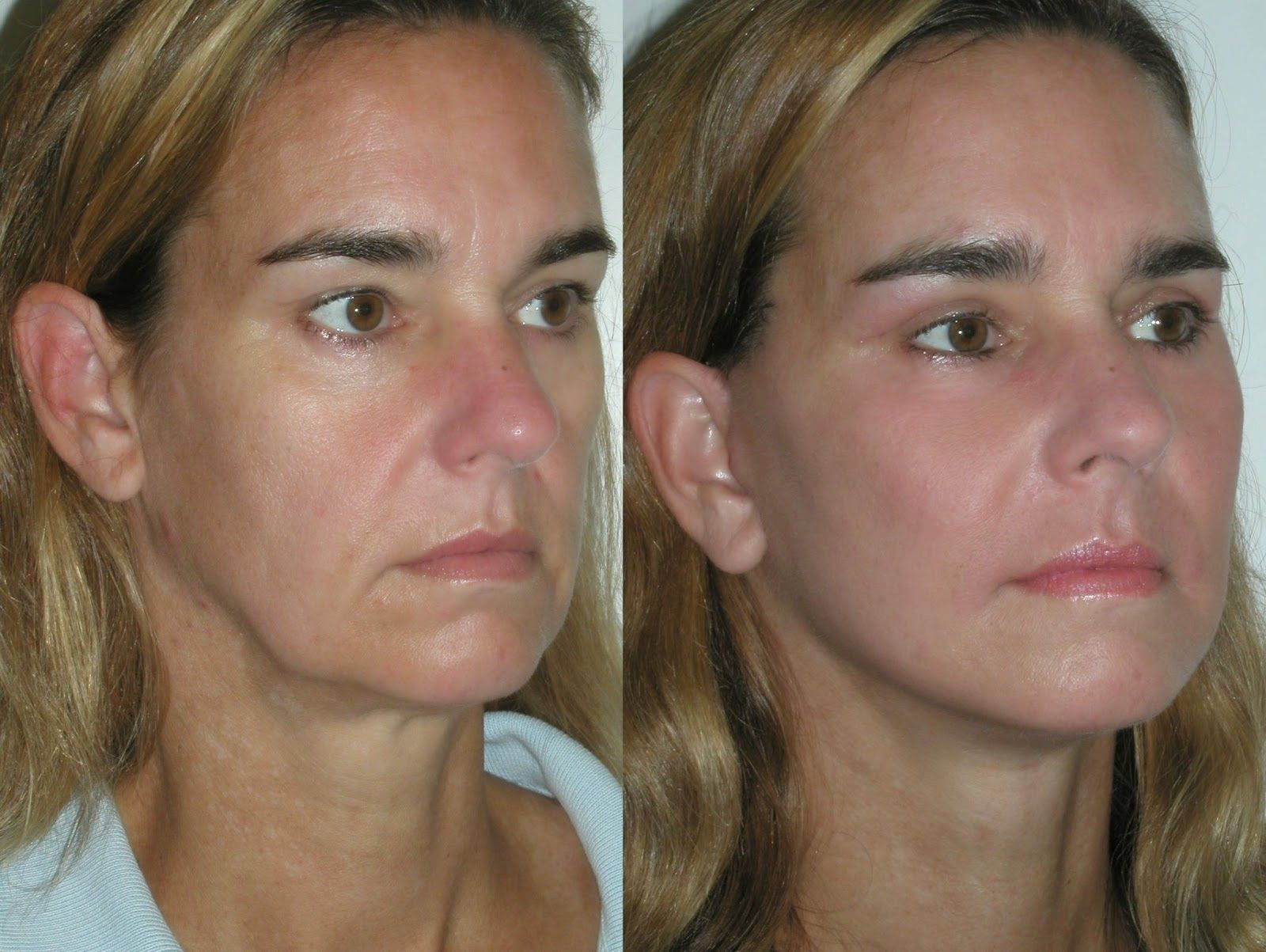 What are some face exercises for sagging jowls?