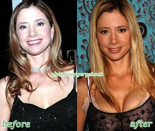 Mira Sorvino Plastic Surgery Before And After Mira Sorvino Plastic Surgery Mira