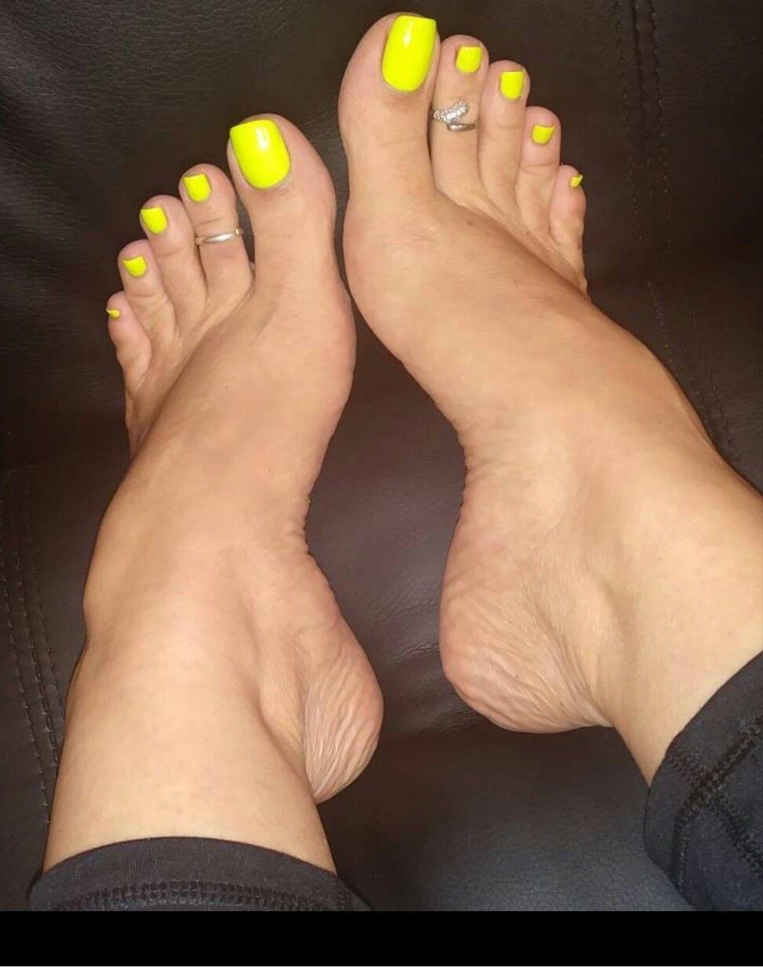Yellow Toenails And Diabetes: Sexy Feet, Beautiful Toes