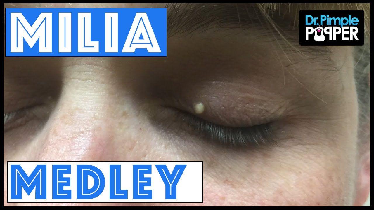 A Dr Pimple Popper Milia Medley Youtube Pimples Pimples