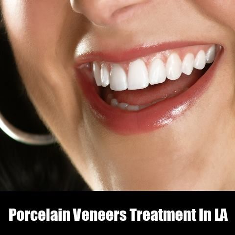 Porcelain Veneers Treatment In LA  We can fix your damaged teeth through our special Porcelain Veneers treatment.  #Porcelainveneers #Crown #teeths