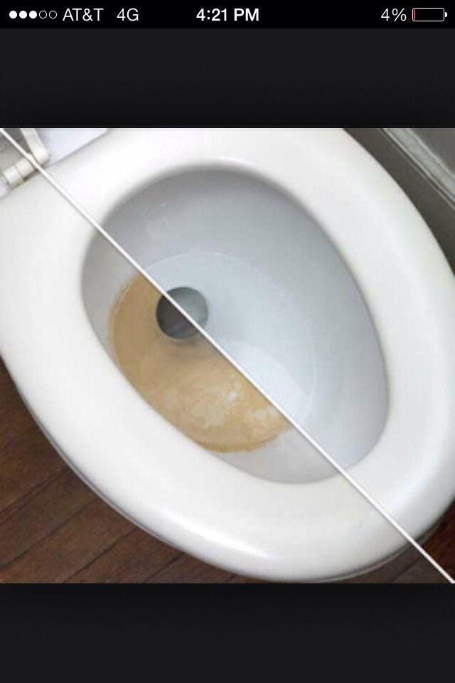 Tough Toilet Stains Use Vinegar Mix To Remove Toilet Stains Cleaning Hacks Bathroom Cleaning Hacks