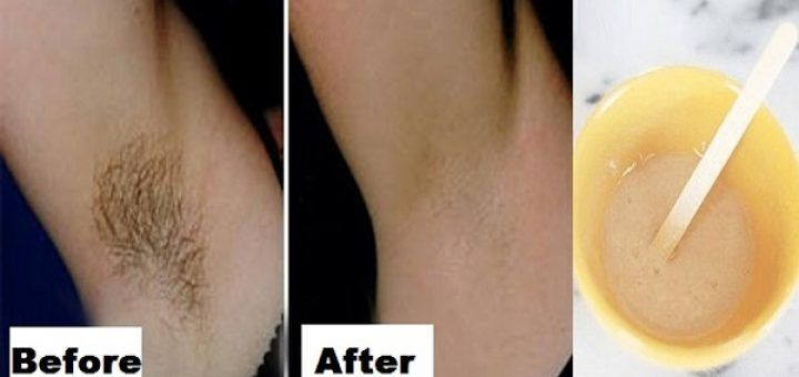 e04ec8b4f744d139a801c146b9a2a29b - How To Get Rid Of Underarm Hair Permanently Naturally