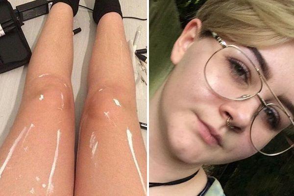 A internet está confusa: isso na perna dessa mulher é óleo ou mancha?