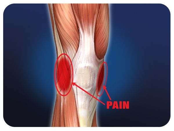 ACL and MCL injuries Knee Braces and Supports Help Reduce ...
