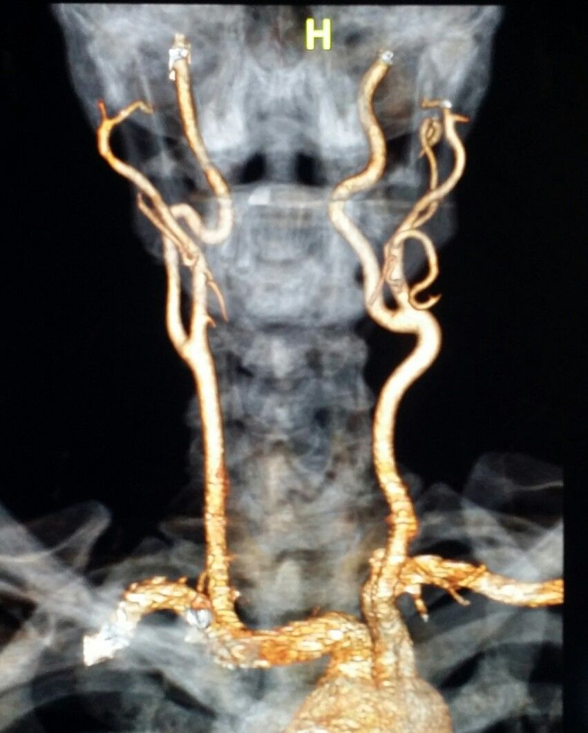 Neck #CT #arteriogram shows the neck #arteries in a #patient with ...