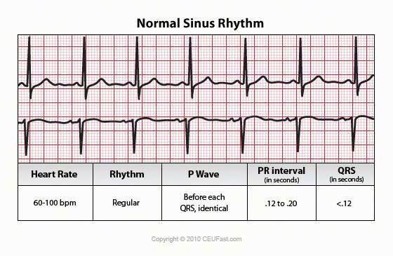 Think, heart rate on ekg strip
