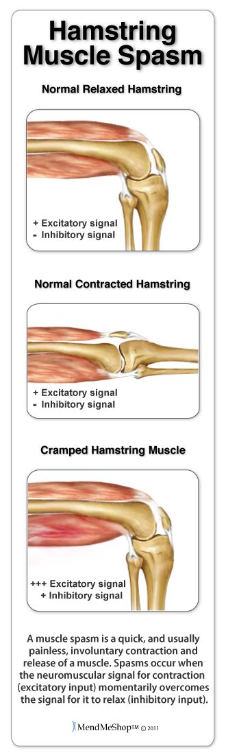 what causes muscle spasms and cramps