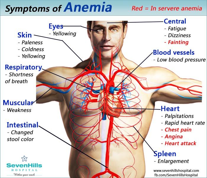 Anemia A Condition In Which There Is A Deficiency Of Red Cells Or Of