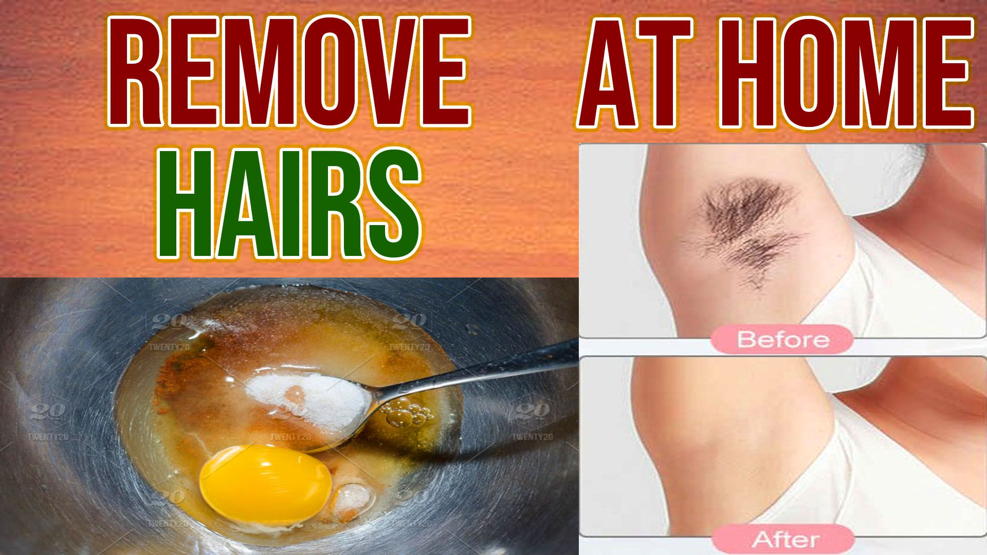 How To Remove Unwanted Hair Permanently With Home Remedies In Urdu Hindi Youth Health Tips In 2020 Unwanted Hair Removal Unwanted Hair Permanently Health Tips