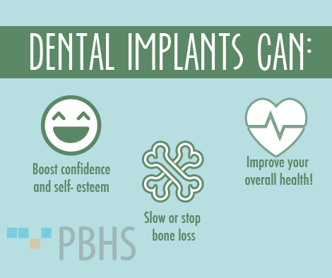 dental implants arent just for looks there are some added health benefits too dental implants can boost confidence and self esteem stop or slow bone