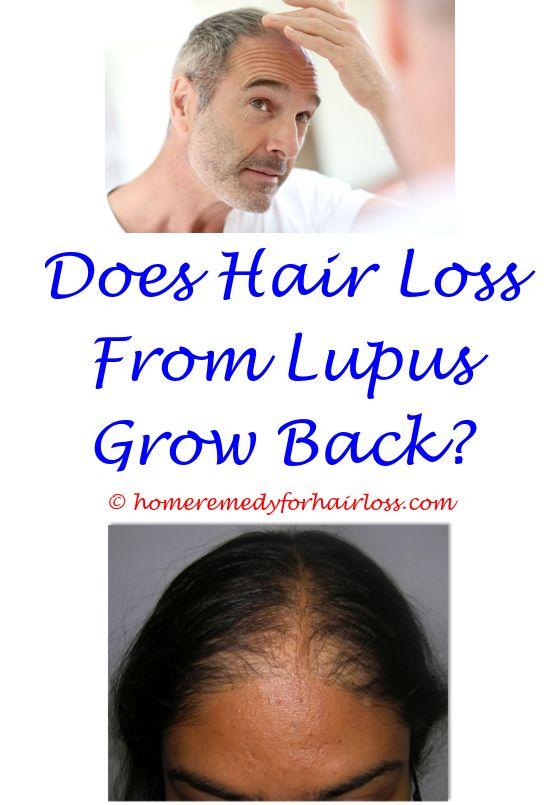 Hair Loss Cure | Hair loss, Female hair loss and Female hair