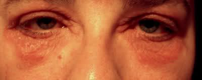 Around My Eyes With Photos Discussion Talkpsoriasis Support Community Inspire Psoriasis Cure Eczema Around Eyes Psoriasis Remedies