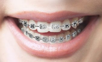 Customize Your Braces Braces Colors Colored Elastics Braces
