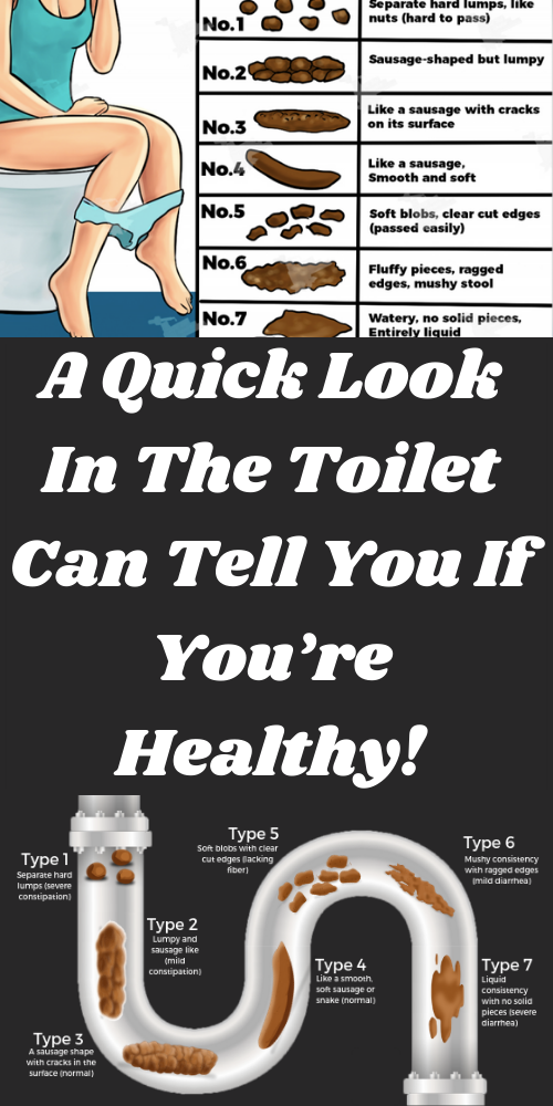 A Quick Look In The Toilet Can Tell You If You're