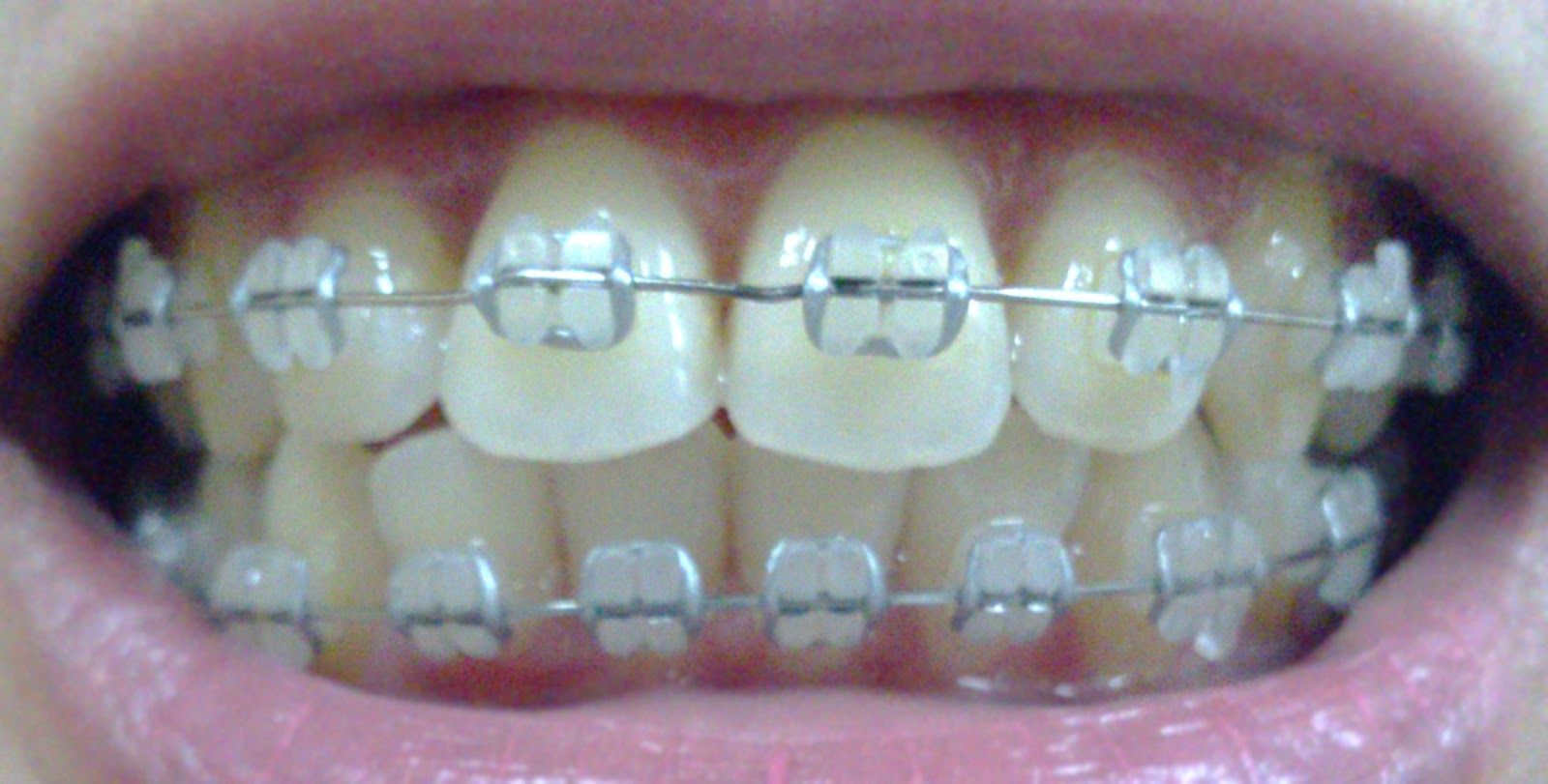 ceramic+braces+gray+bands | Photo taken: 05 Jan 2013 ...