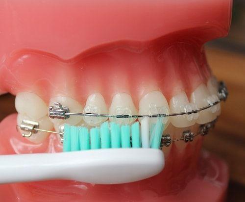Feste Zahnspange Brackets Infos & Hilfe 2020   Zahnspange
