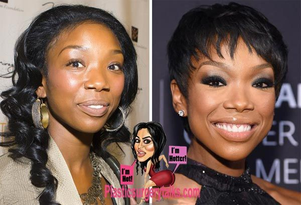 Brandy Norwood Plastic Surgery Is That Nose Job Plastic Surgery Nose Job Cosmetic Surgery