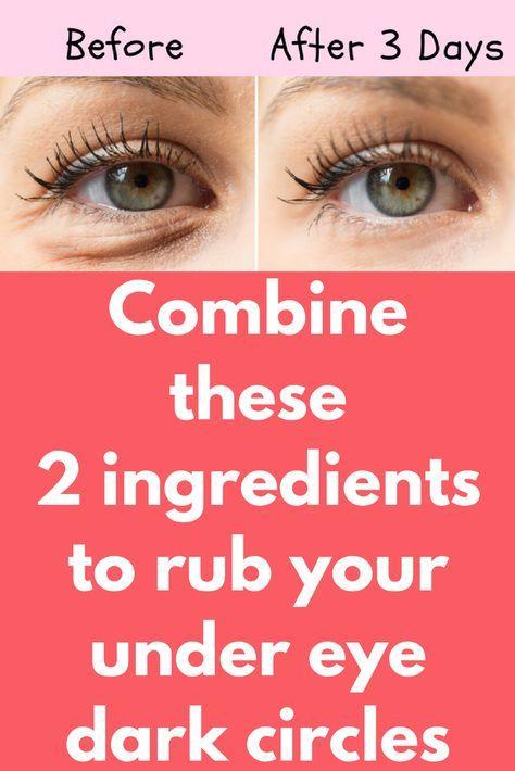 Combine these 2 ingredients to rub your under eye dark