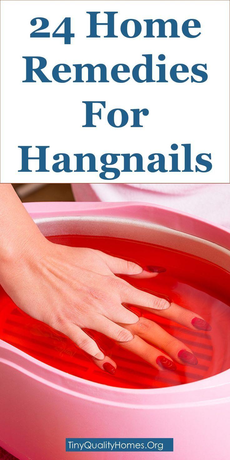 how to heal an ingrown fingernail