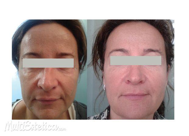 Mejora la apariencia de tu rostro  http://www.multiestetica.com/estetica-tratamientos-esteticos-vservicios-1107.html