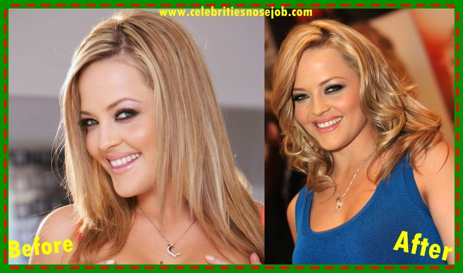 Alexis Texas Plastic Surgery Before And After Nose Job