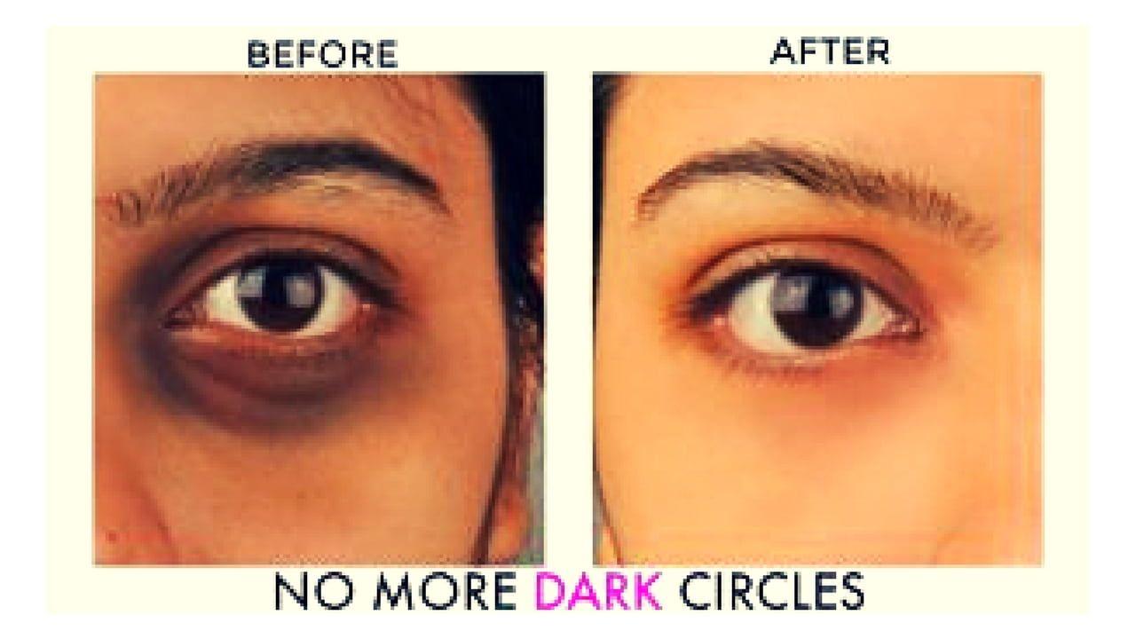 e08907ee039fac1f92e2add6498bbf24 - How To Get Rid Of Black Eyes From No Sleep
